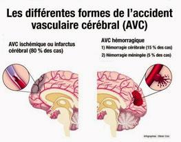 Accident vasculaire cérébrale - AVC - Cerveau