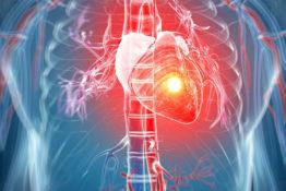 Crise cardiaque - Infarctus