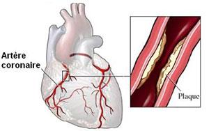 Crise cardiaque - Infarctus - Artère coronaire
